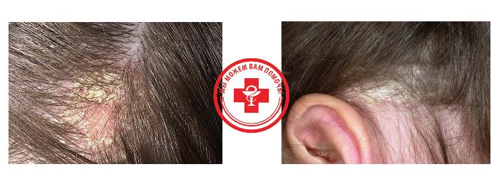 два фото волос с себорейным дерматитом