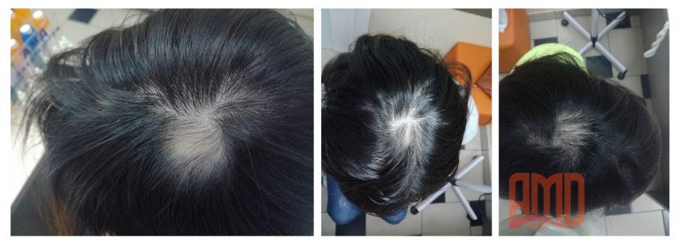 лечение волос до и после